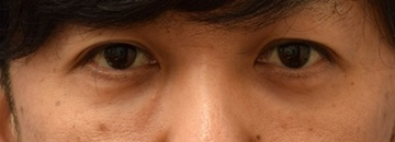 スキンクリニック藤枝の目元の整形、くま治療の症例写真[アフター]