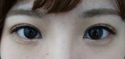 湘南美容クリニック神戸院の目・二重の整形の症例写真[アフター]