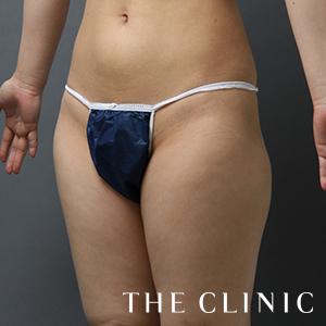 THE CLINIC(ザ・クリニック)の脂肪吸引の症例写真[ビフォー]