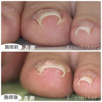 樹のひかり 形成外科・皮ふ科のその他の美容皮膚科治療の症例写真