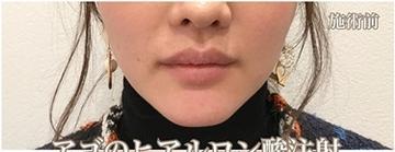 西宮SHUHEI美容クリニックの顔の整形(輪郭・顎の整形)の症例写真[ビフォー]