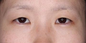 SELECT CLINIC(セレクトクリニック)の目・二重整形の症例写真[ビフォー]