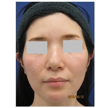 顎プロテーゼの入れ替えで理想の輪郭への症例写真[ビフォー]