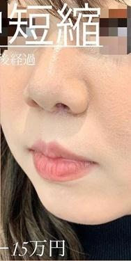 ルラ美容クリニックの鼻の整形の症例写真[アフター]