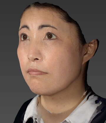 すなおクリニックの顔のしわ・たるみの整形の症例写真[ビフォー]