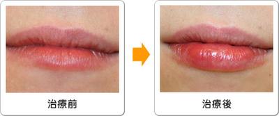 唇にヒアルロン酸注入(1回)の症例写真