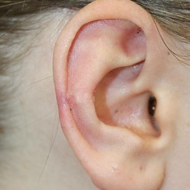 耳のケロイドの症例写真[アフター]