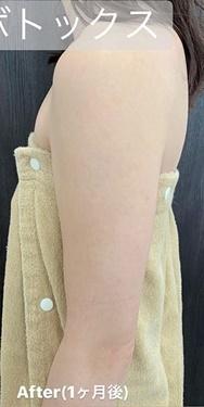 ルラ美容クリニック 高田馬場院の痩身、メディカルダイエットの症例写真[アフター]