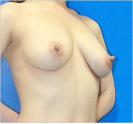 オザキクリニックLUXE新宿の豊胸手術(胸の整形)の症例写真[アフター]