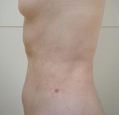 腹部・腰部の脂肪吸引の症例写真[アフター]