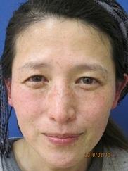 ハートライフクリニック(美容外科・美容皮膚科・女性内科)の症例写真[ビフォー]