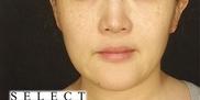 SELECT CLINIC(セレクトクリニック)の脂肪吸引の症例写真[ビフォー]