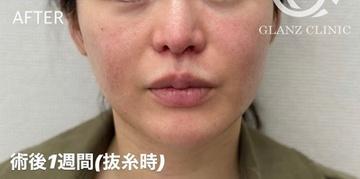 GLANZ CLINIC (グランツクリニック)の口もと、唇の整形の症例写真[アフター]