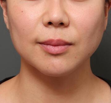 オザキクリニック LUXE新宿の鼻の整形の症例写真[ビフォー]