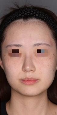 シミ、そばかす治療の症例写真[アフター]