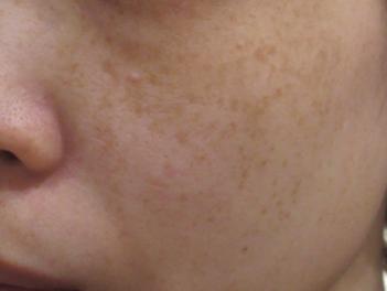 ヴィーナスヴェルサ 10回(5回×2クール)の症例写真[ビフォー]