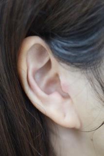 副耳切除の症例写真[アフター]