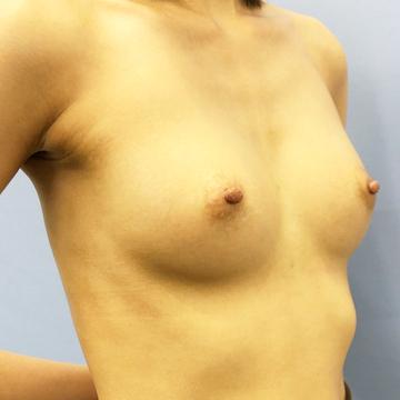 湘南美容クリニック 新潟院の豊胸・胸の整形の症例写真[アフター]