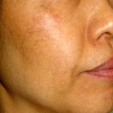 佐井泌尿器科・皮フ科クリニックのシミ治療(シミ取り)・肝斑・毛穴治療の症例写真[ビフォー]