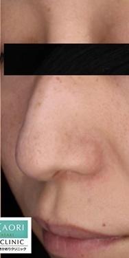 皮フ科 かわさきかおりクリニックのシミ治療(シミ取り)・肝斑・毛穴治療の症例写真[アフター]