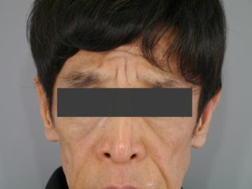 メディエスクリニックの顔のしわ・たるみの整形(リフトアップ手術)の症例写真[ビフォー]