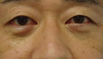 みらいビューティークリニック和歌山の目元の整形、くま治療の症例写真[アフター]