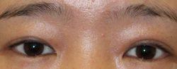 すず美容形成外科医院 【女性専門クリニック】の目・二重整形の症例写真[ビフォー]