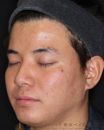 のニキビ治療・ニキビ跡の治療の症例写真[アフター]