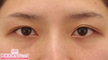 湘南美容クリニック 東京蒲田院の目・二重の整形の症例写真[ビフォー]
