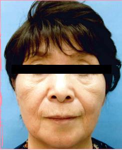 ■ベビーコラーゲン(口上)+ヒアルロン酸注入(ほうれい線)の症例写真[ビフォー]
