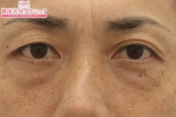 湘南美容クリニック 東京蒲田院の目元の整形、くま治療の症例写真[ビフォー]