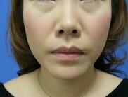 新宿美容外科クリニックの顔の整形(輪郭・顎の整形)の症例写真[アフター]