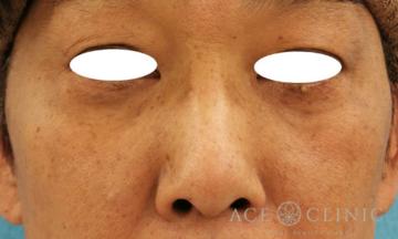 エースクリニックグループの鼻の整形の症例写真[ビフォー]