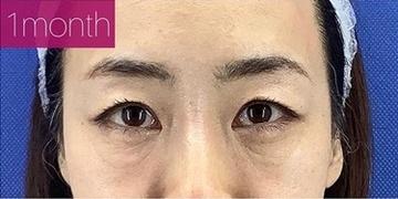 銀座長瀬クリニックの目元整形・クマ治療の症例写真[アフター]