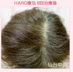 ハーグ療法、女性型薄毛症の症例写真[アフター]