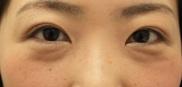 ヴィンテージビューティークリニック横浜の目・二重の整形の症例写真[アフター]