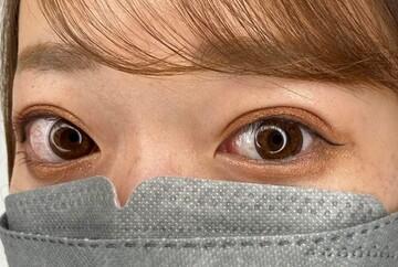 東京美容外科 横浜院の症例写真[アフター]