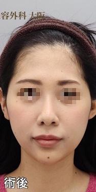 銀座みゆき通り美容外科大阪院の顔の整形(輪郭・顎の整形)の症例写真[アフター]