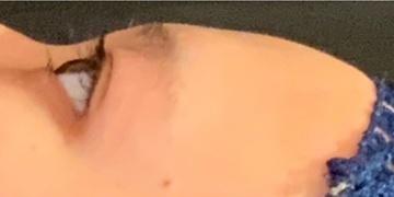 東京ミッドクリニックの輪郭・顎の整形の症例写真[ビフォー]