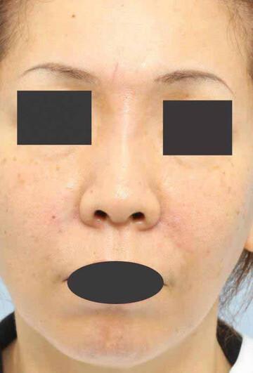 よだ形成外科クリニックの顔のしわ・たるみの整形(リフトアップ手術)の症例写真[アフター]