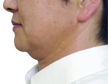 シロノクリニック 恵比寿のリフトアップレーザーの症例写真[ビフォー]