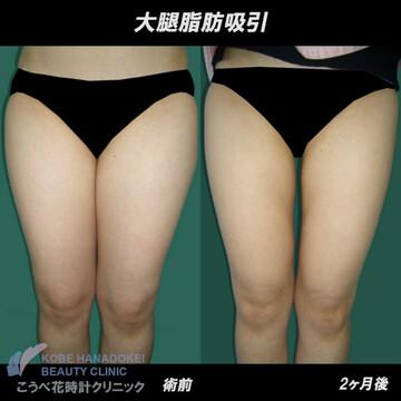 こうべ花時計クリニックの脂肪吸引の症例写真