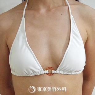 東京美容外科の豊胸手術(胸の整形)の症例写真[ビフォー]