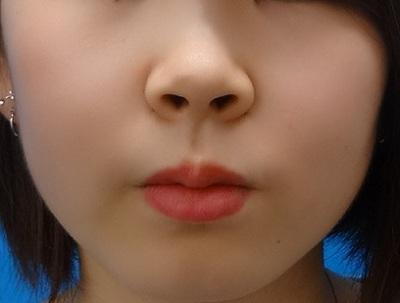 小鼻縮小 埋没法 スーパーナチュラルの症例写真[ビフォー]