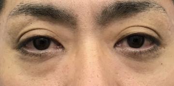 湘南美容クリニック 横須賀中央院の目元の整形、くま治療の症例写真[ビフォー]