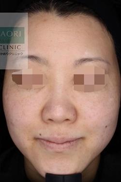 皮フ科 かわさきかおりクリニックのシミ取り・肝斑・毛穴治療の症例写真[アフター]