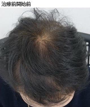 静岡美容外科橋本クリニックの薄毛治療の症例写真[ビフォー]