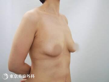 東京美容外科 青森院の豊胸・胸の整形の症例写真[ビフォー]