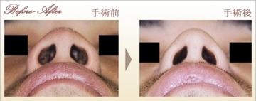 タウン形成外科クリニックの鼻の整形の症例写真