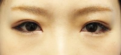 【二重埋没法】クイックコスメティーク・ダブル(1ヵ月後)の症例写真[アフター]